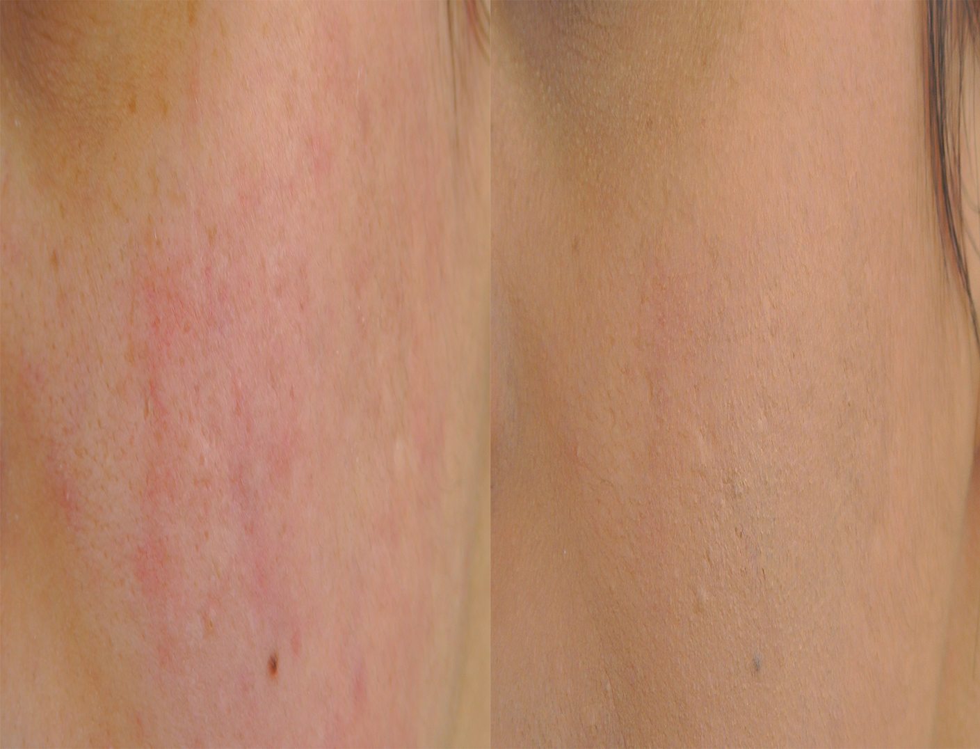 Eliminer acne et cicatrices